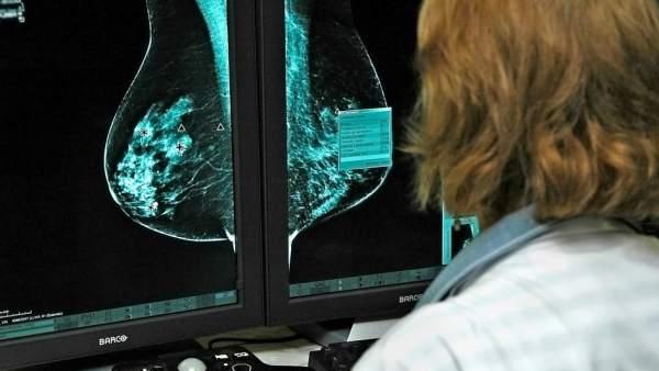 """Blanca Cantos, oncóloga experta en cáncer de mama: """"Hay más casos pero más supervivencia"""""""